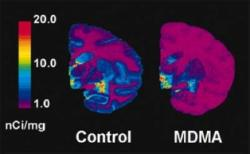 SERT (serotonin neuron) density measured by PET scan in baboon brains. The baboon on the right was given a neurotoxic dose of MDMA a year before the scan; the control baboon was given a placebo. Image courtesy: DEA