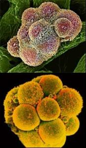 Cancer stem cells (top) looks and behaves almost exactly like normal stem cells (above). Image Courtesy of Union-Tribune