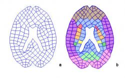Fig. 17a: Computational Unstructured Grid. Fig. 17b: Brain structures assigned to grid compartments. Caudate Nucleus (red), Putamen (orange), Thalamus (yellow), Hippocampus (green), Midbrain (blue), Superior Frontal Gyrus (brown), Inferior temporal gyrus (purple), Middle occipital lobe (mint green), posterior occipital lobe (pink).