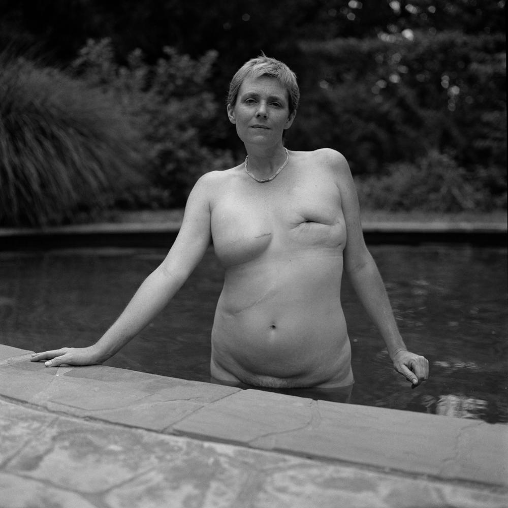 breastcancerportraits001.jpg