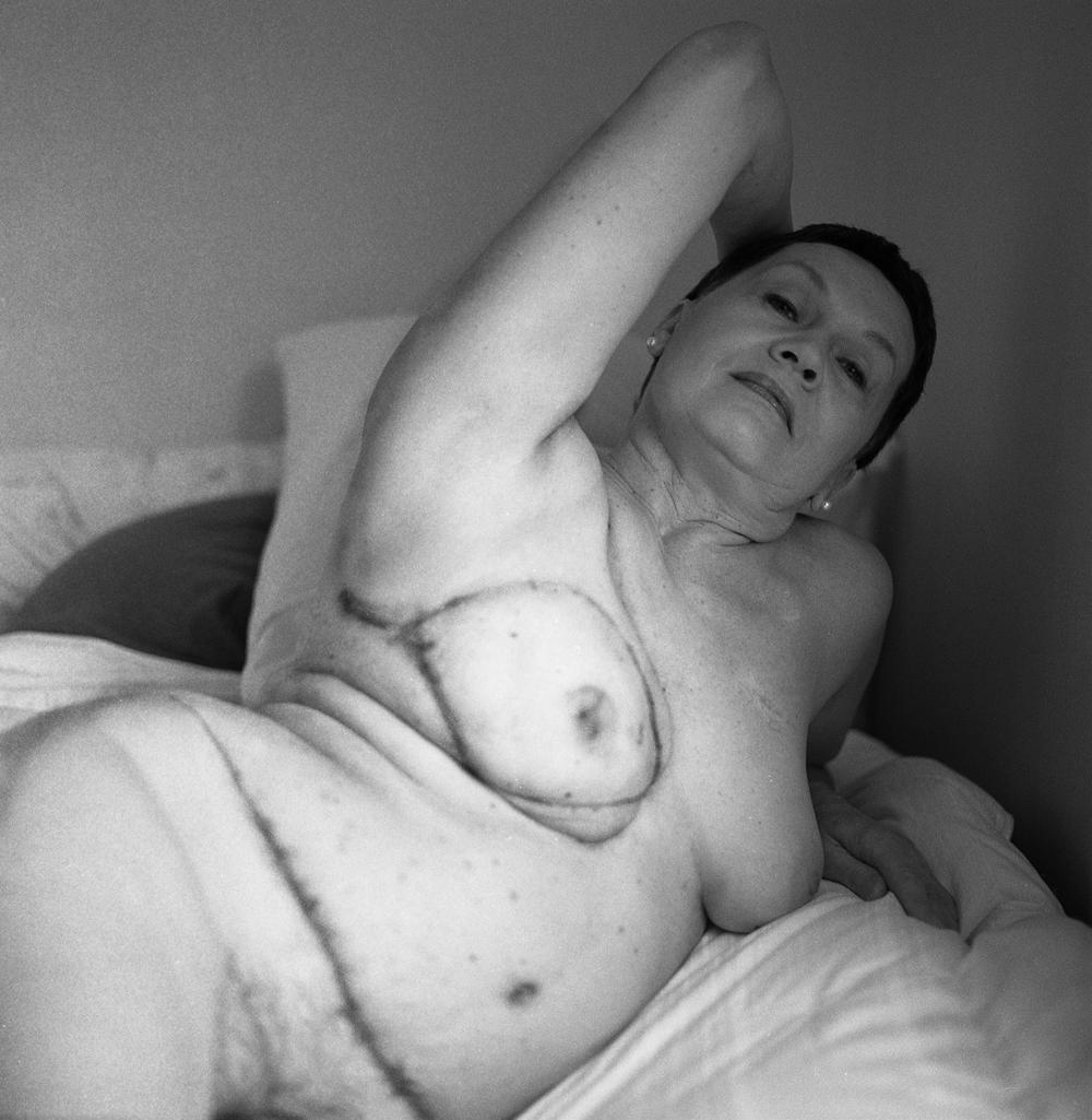 breastcancerportraits002.jpg