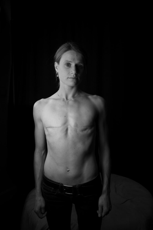 breastcancerportraits003.jpg