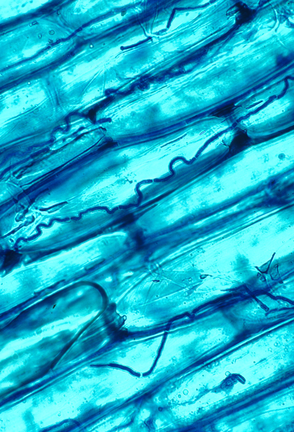 Endophytic fungi living in the cells of a grass leaf.