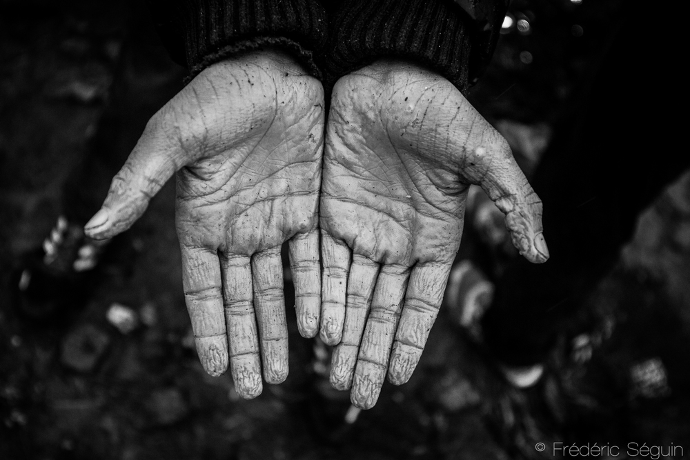 Yes, this photo belongs here. Those are the hands of a twelve years old boy after spending many days under the rain without shelter in Moria Camp. Lesvos Island, Greece.