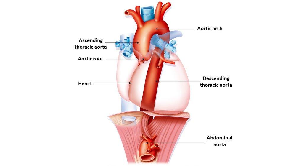 The Aorta Taad Genetic Aortic Disorders Association Canada