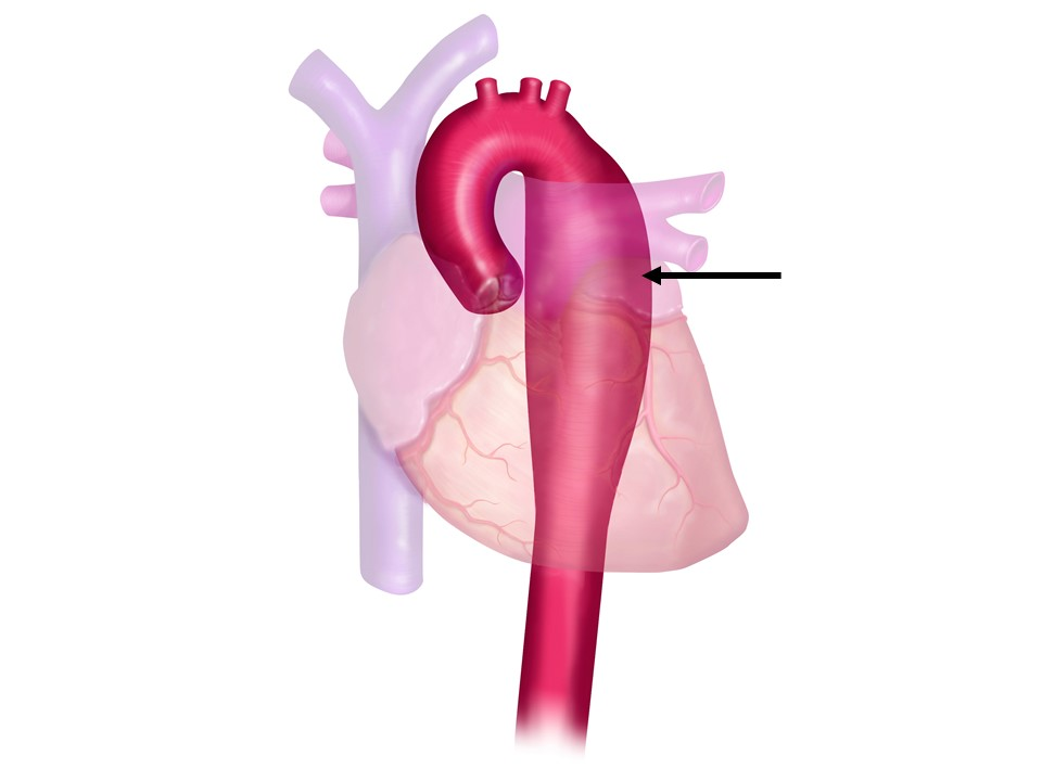 Figure 3b: Descending Thoracic Aortic Aneurysm