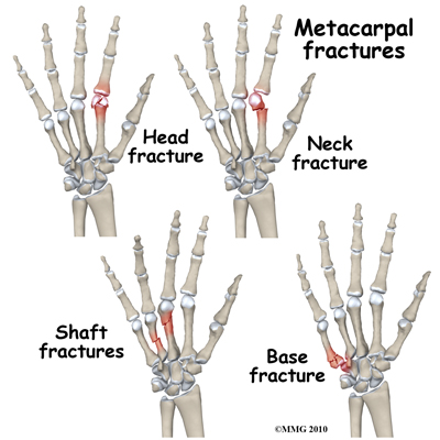 Fractures of the Hand & Fingers — Hand Associates Of North ...