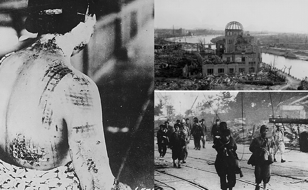 Kimono pattern burned into Japanese woman after bomb blast, Ruins in Hiroshima; Survivors on road after blast