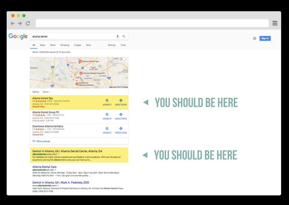 atlanta dental search engine optimization