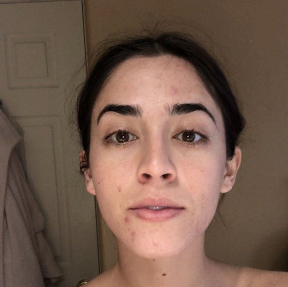 """Around 13 weeks pregnant. Dull skin, painful break outs, bummed out. My skin fluctuated a lot from this, I'd say this was it on a """"good day""""."""