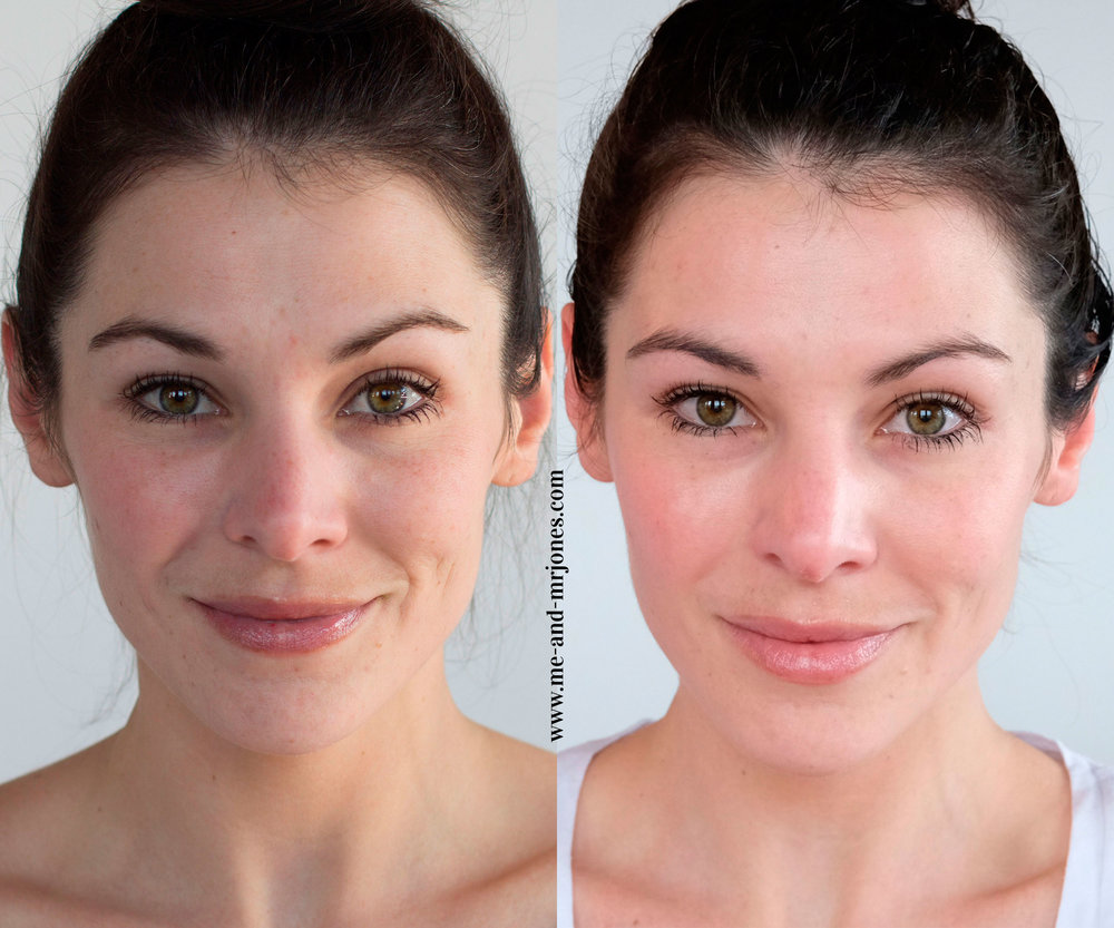Rodan and Fields before and after with Redefine Regimen, Redefine Eye Cream, anti-aging skincare. Rodan and Fields Redefine Review.