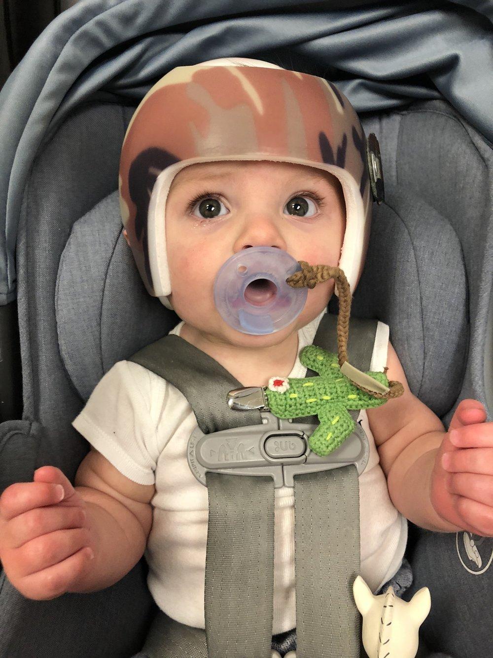 Jett Jones 7 Month Update.  Starband helmet to fix flat spot.