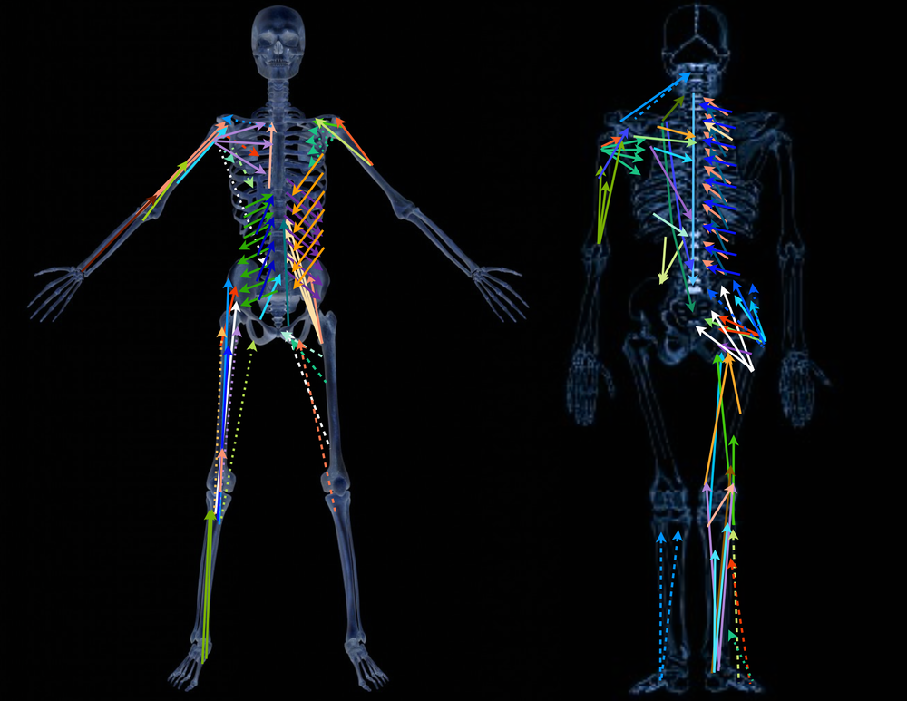 Each colored line represents a muscle (or different divisions of a muscle), with the ends of each l  ine representing the muscle's two   attachment points  .  If you improve the ability of a muscle to shorten between these two points, then the better it will shorten regardless of where your body is in space.