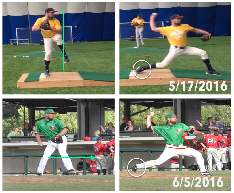 Pitcher's progress is seen in comparing his initial pitching delivery to adjustments made over a two week period