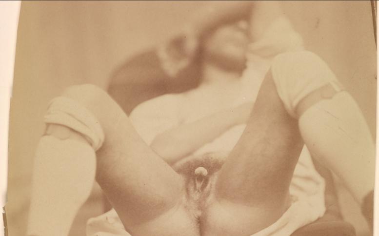 naked_before_the_camera_metropolitan_museum_of_art_hermaphrodite