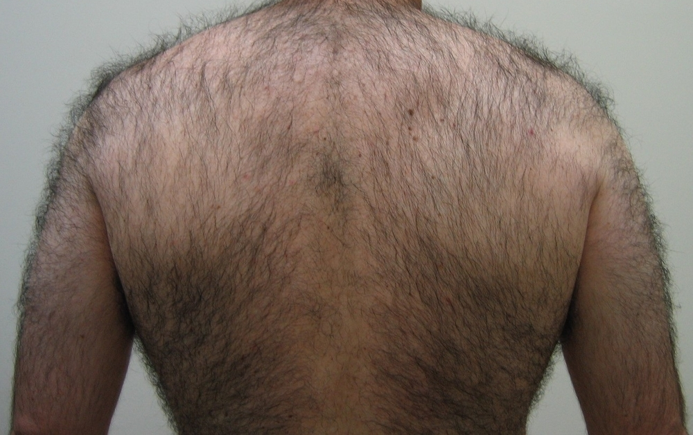Lynton Hair Removal - Back before hair removal
