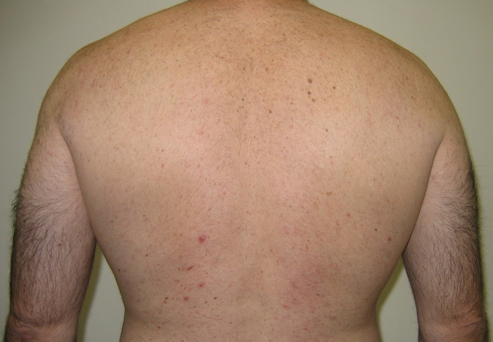 Lynton Hair Removal - Back 6 weeks after 4th treatment