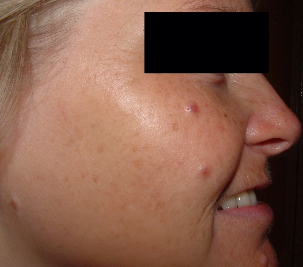 Lynton Skin Rejuvenation - Before