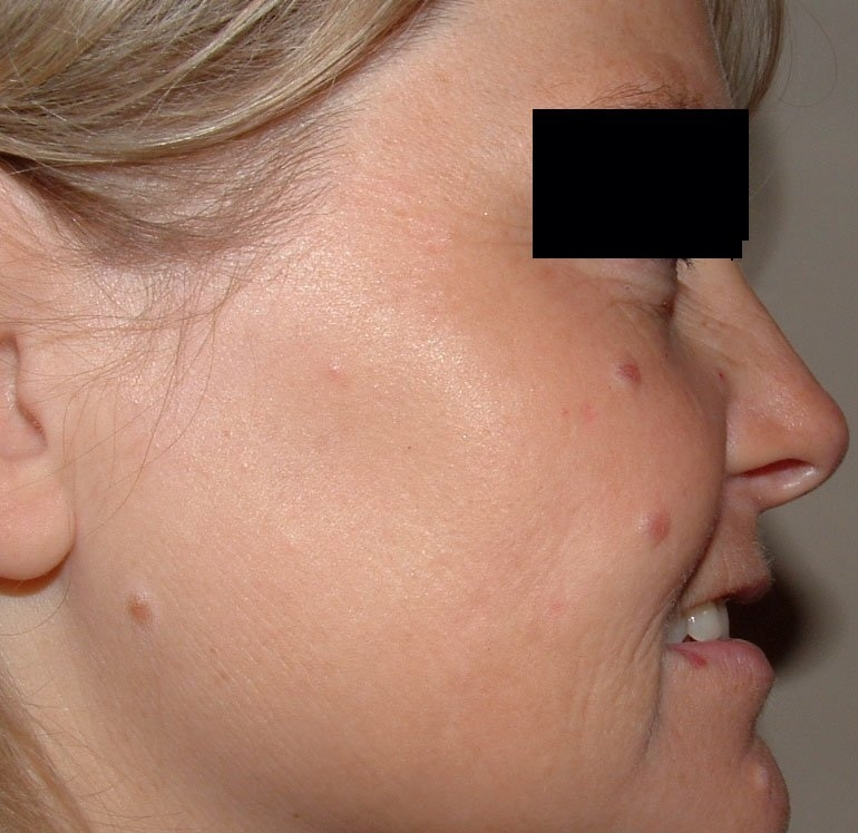 Lynton Skin Rejuvenation - After