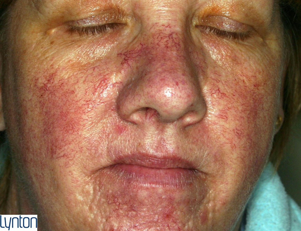 Lynton Red Vein Treatment - Before
