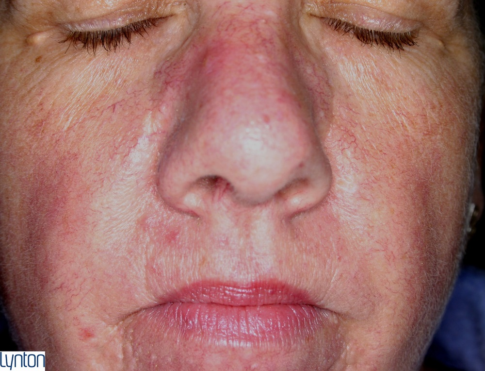Lynton Red Vein Treatment - After 3rd Treatment