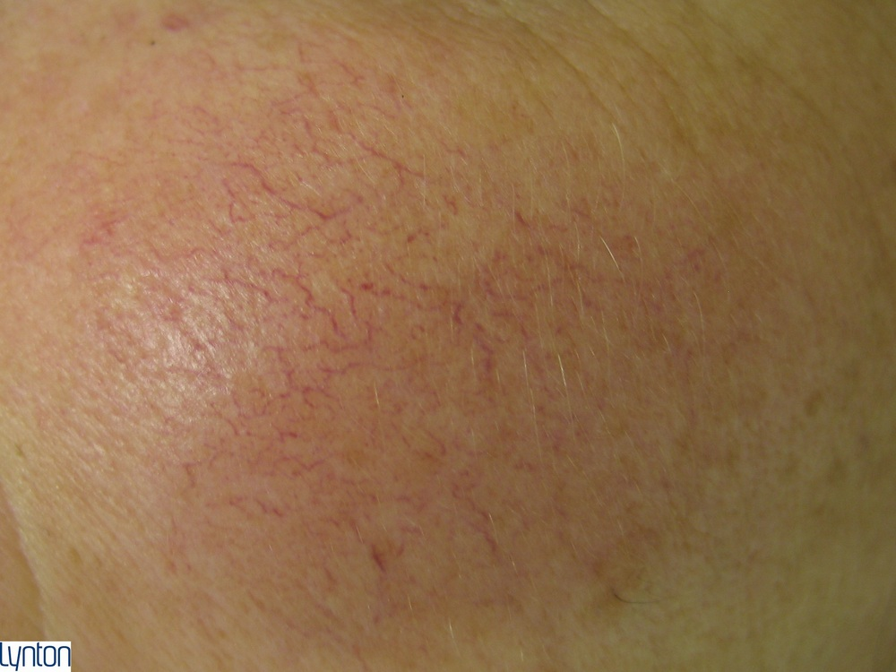 Lynton Vascular Red Vein Treatment - Before