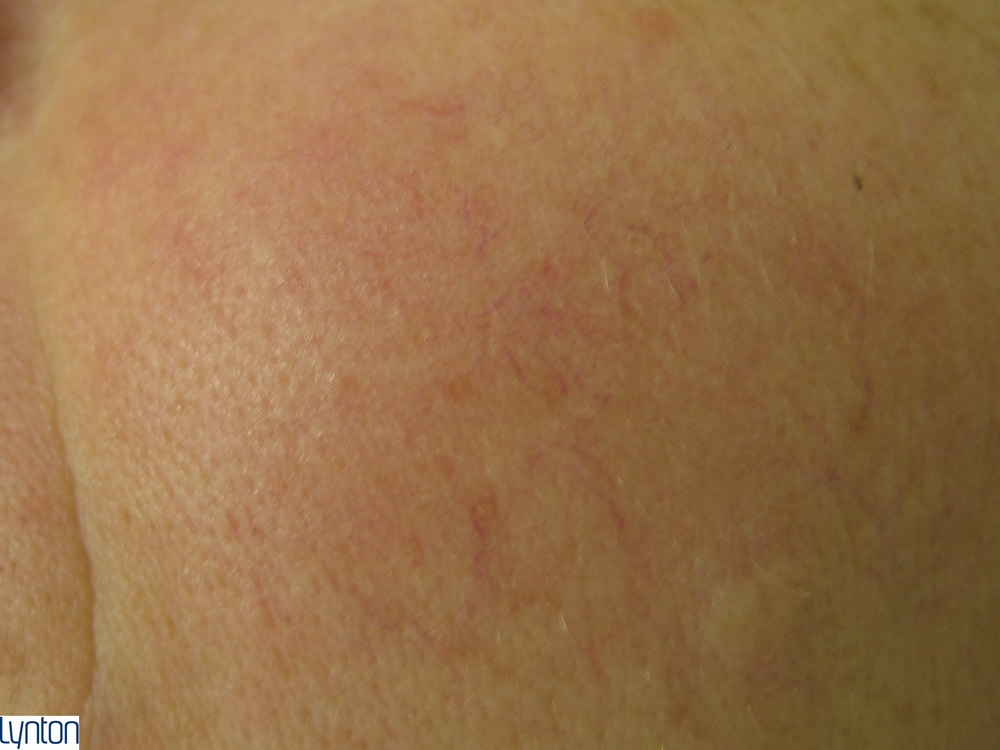 Lynton Vascular Red Vein Treatment - After