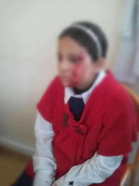 """صورة الفتاة الضحية """"ن.م"""" بعد الاعتداء."""