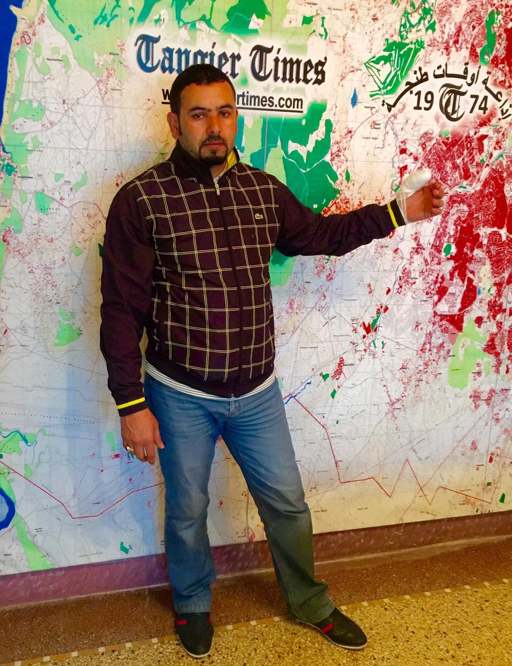 """صورة """"عبدالعالي الطوى"""" يظهر يده اليسرى المصابة"""