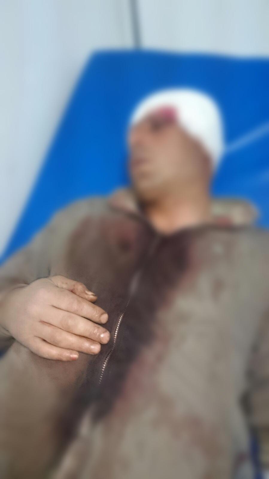 صورة لضحية جناية اعتراض السبيل وقد تم وضع الضباب على وجهه