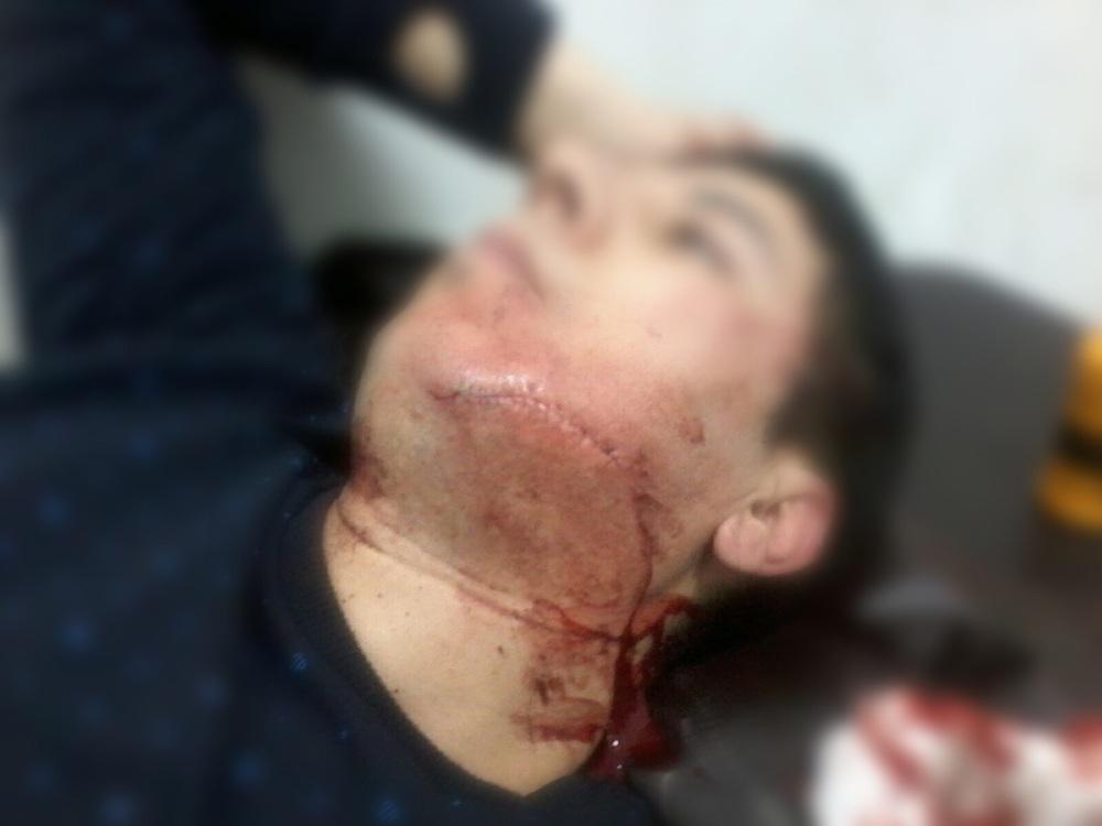 صورة لأحد الضحايا يعمل نادل مقهى بطنجة، تظهر حجم الاعتداء عليه، وقد تم وضع الضباب على وجهه