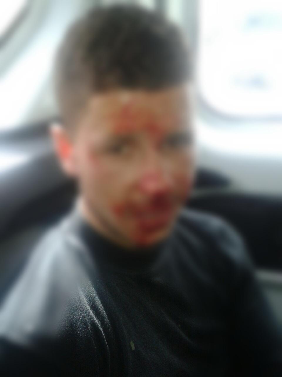صورة للص الموقوف تظهر الأضرار التي تعرض لها في وجهه وقد تم وضع الضباب عليها