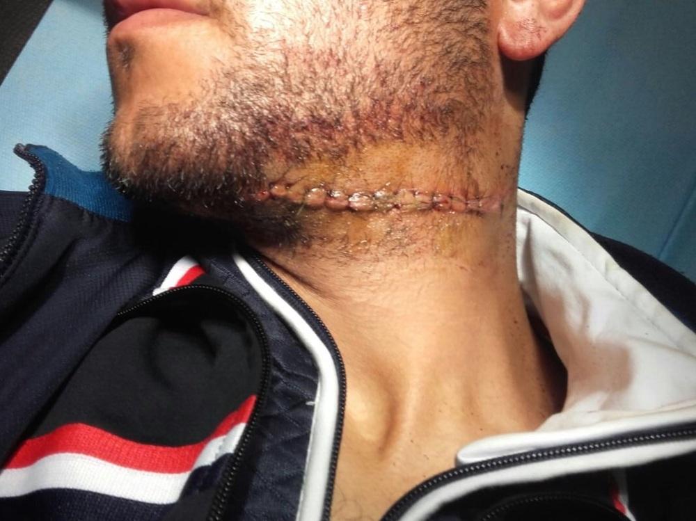 الأضرار التي تعرض لها الضحية
