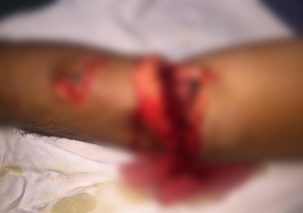 الخلية الإرهابية حاولت بتر اليد اليسرى للصحفي أسعد المسعودي (نعتذر على قساوة الصورة، وقد تم وضع الضباب عليها)