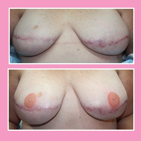 Bilateral mastectomy w/o nipple reconstruction 3D nipple tattoos