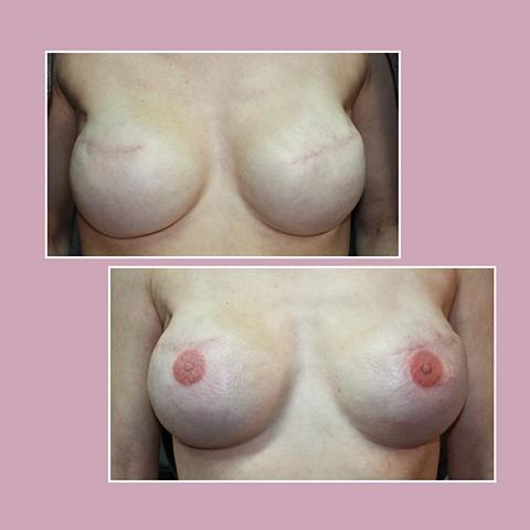 Bilateral mastectomy w/o nipple reconstruction 3D nipple tattoos