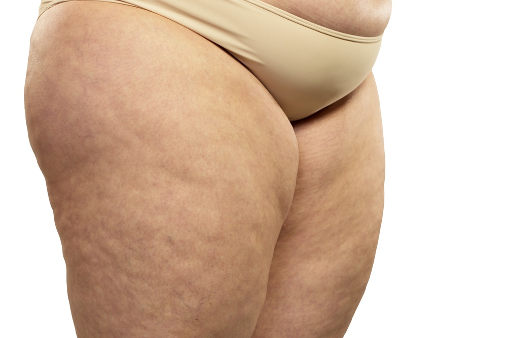 Cellulite Grade 3