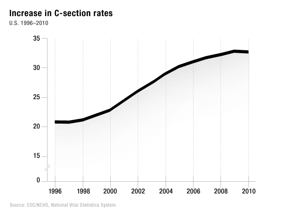 Abnormal increase in c-section rates over time. most c-sections performed today are found to have no clinical relevance. today c-section is considered to be an alternative  form of delivery, not a major abdominal surgery.