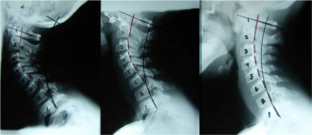Progressive x-ray results of correcting forward head posture with chiropractic care.