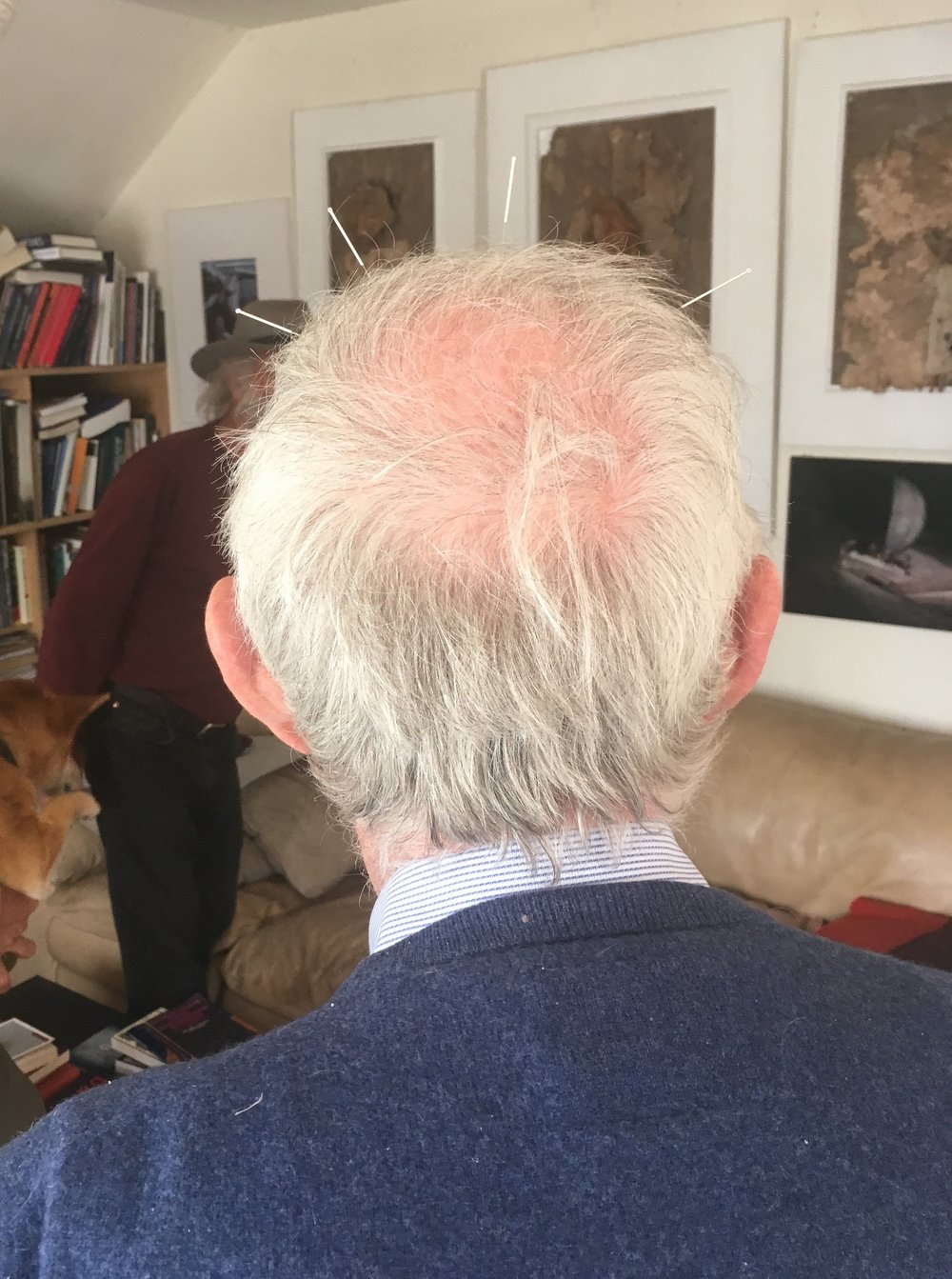 The back of the German acupuncturists head, sporting 4 acupuncture needles