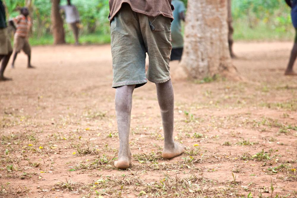 trisa-taro-legs-village-uganda.jpg