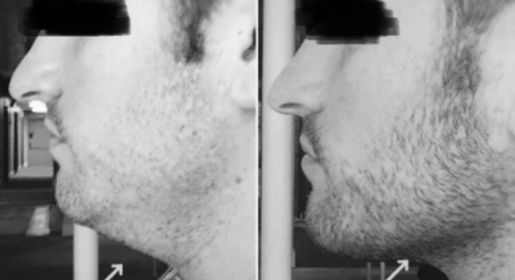 jaw fillers for men preston