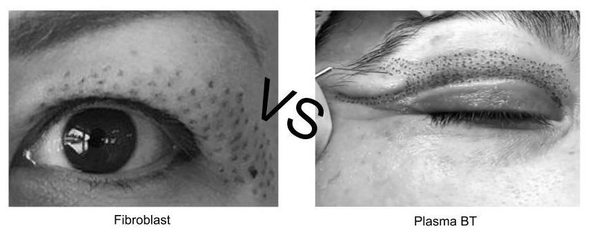 plasma bt vs fibroblast.jpg