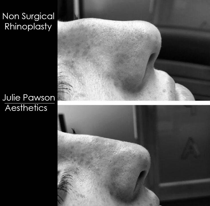 nose job final.jpg