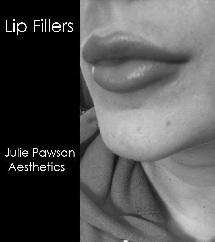 big lips final.jpg