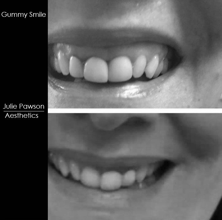 Gummy Smile .jpg