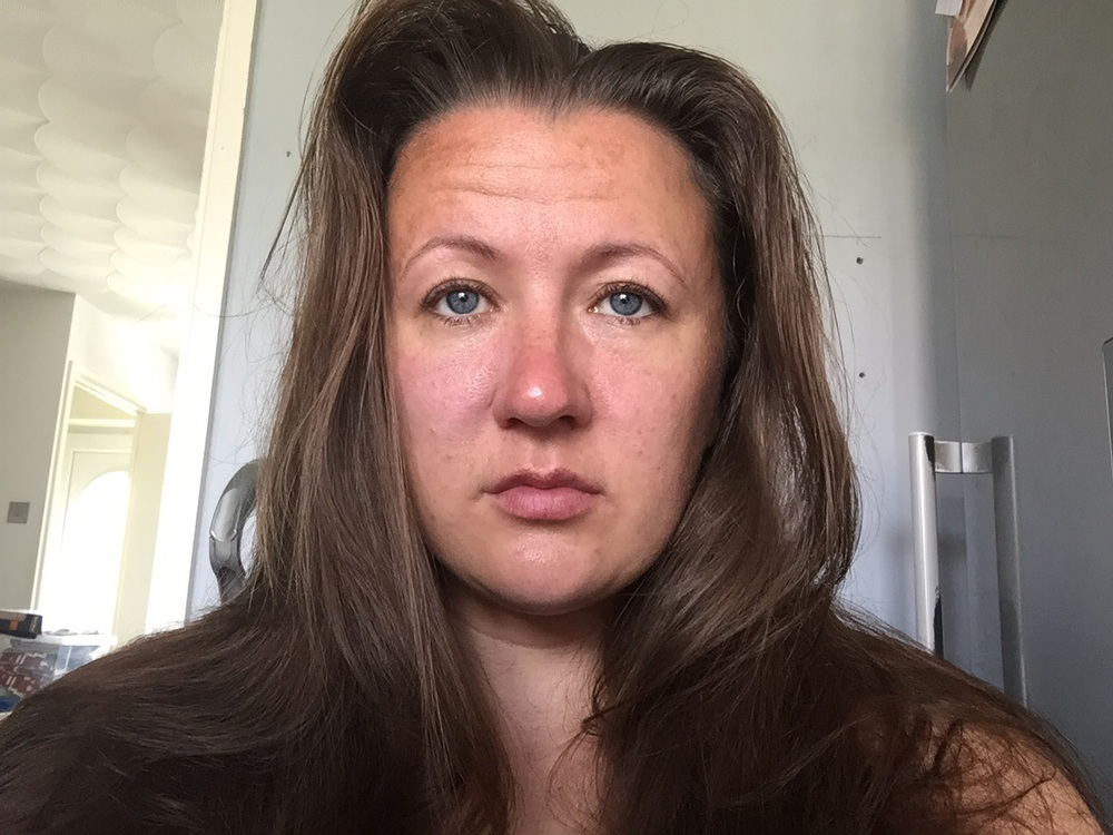 Before. As you can see I have no makeup on, I have a lot of red patches and uneven skin. I didnt find this easy to do as I normally shy away from the camera.