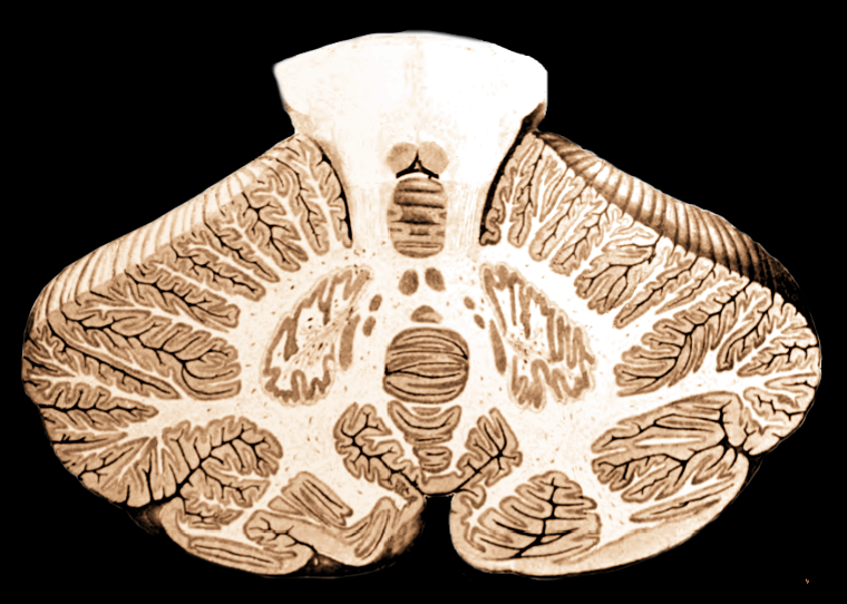 Cross-section of the cerebellum