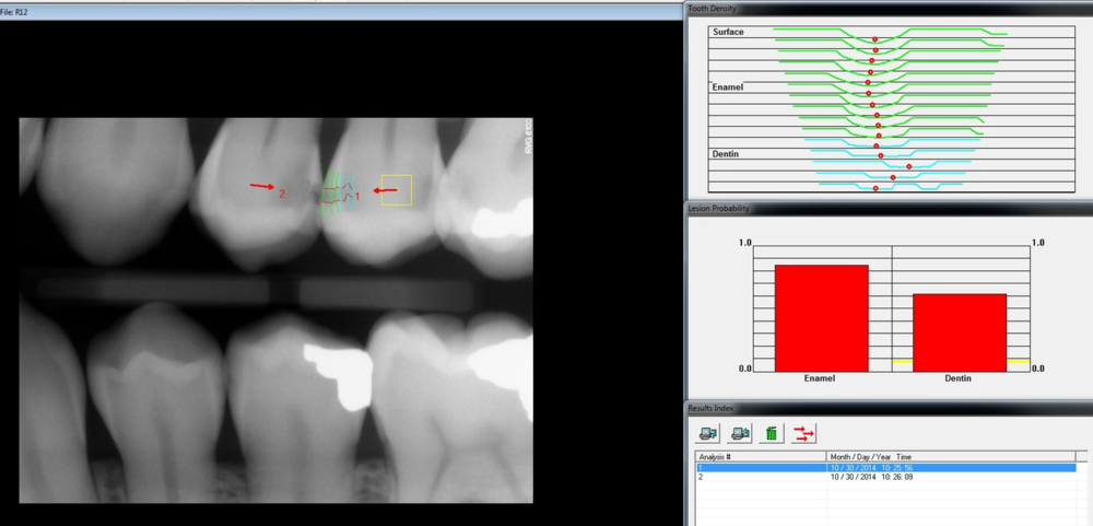 The depth of the red dots show how far the cavity extends into the inner layer of the tooth.  The green lines indicates the outer layer (enamel), while the blue indicates the inner layer (dentin).