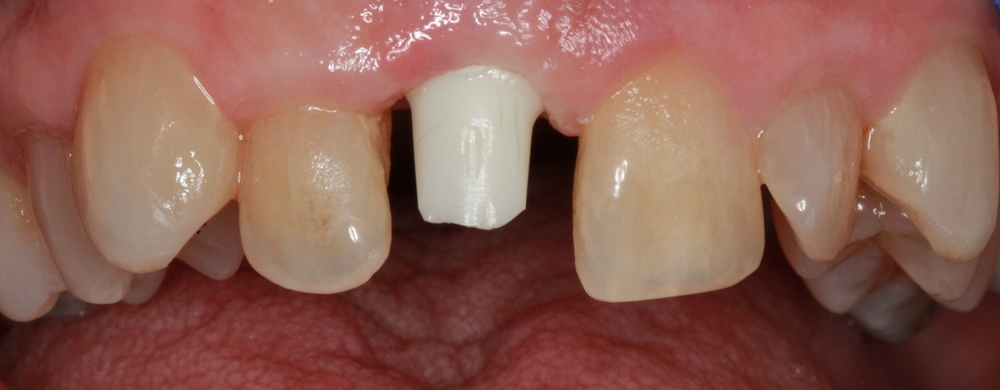 Zirconia Abutment on Implant